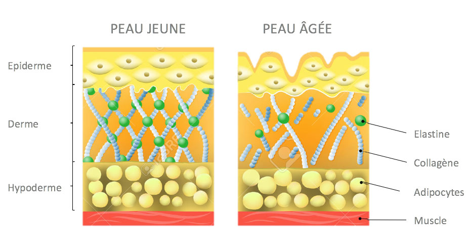 pattern effect of aging on the skin